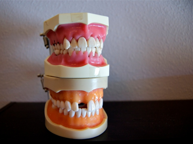 Old typodont dental models from school
